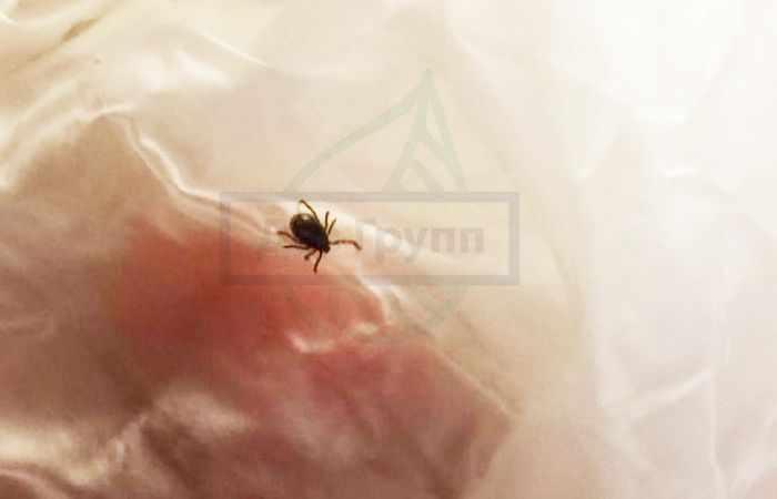 Клещевой энцефалит 2020 - фотография клеща