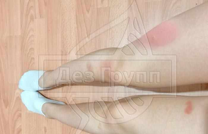 Фото укуса слепня на ноге